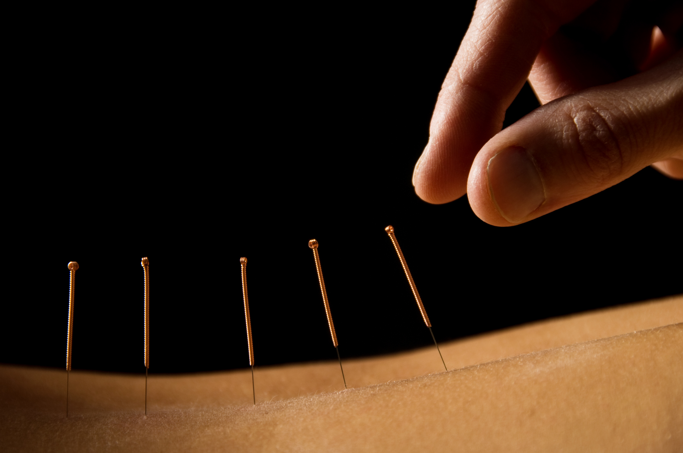 Brian Phillips – Acupuncture (Inc. Veterinary)